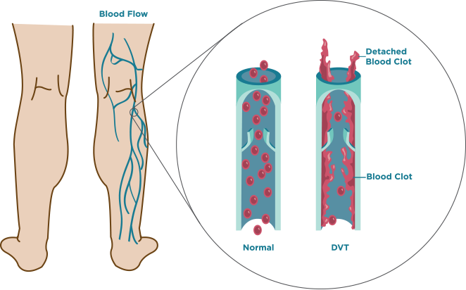 what is dvt | deep vein thrombosis, Human Body
